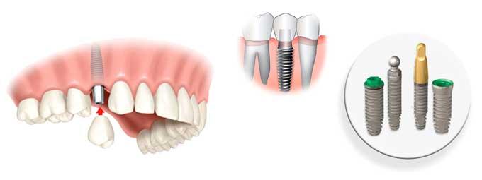 види зубних імплантів