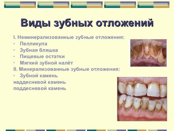 Види зубних відкладень