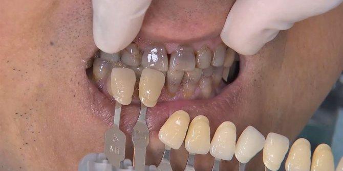 вініри для відновлення зубів