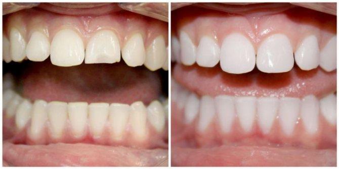 вініри на відколи на зубах