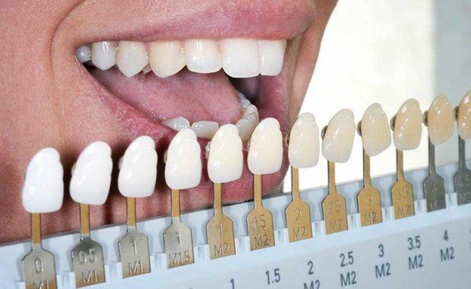 Вініри на зуби в СПБ - види, ціни, фото