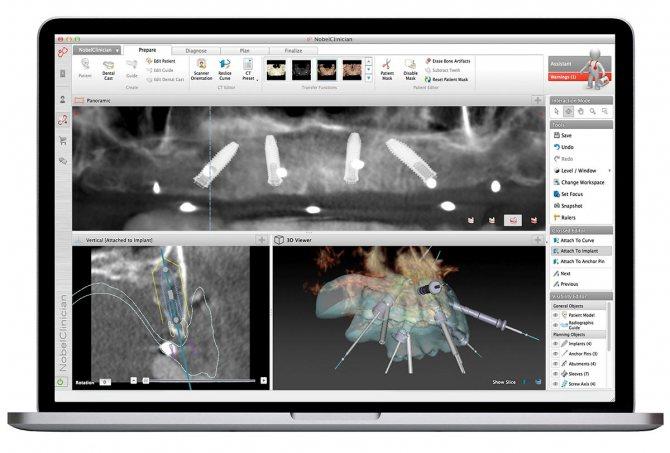 Віртуальне планування дозволяє врахувати найдрібніші деталі і продумати процес імплантації. Фото: Smile-at-Once