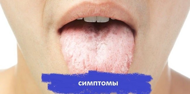 Вірус герпесу на мові