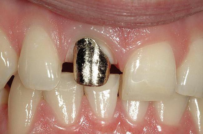 вкладка культевая штифтова в багатокореневих зуб