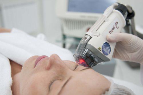 вплив фракційного фототермоліза на шкіру