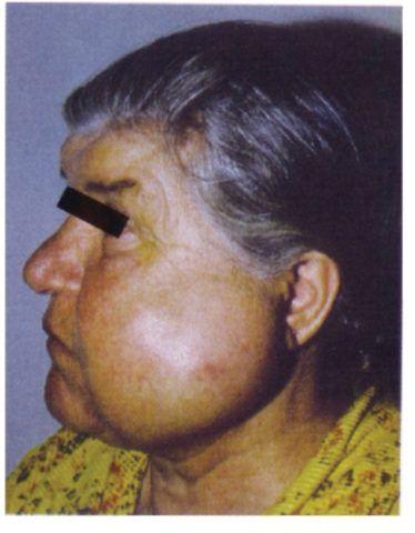 Зовнішній вигляд пацієнта з Амелобластома нижньої щелепи.