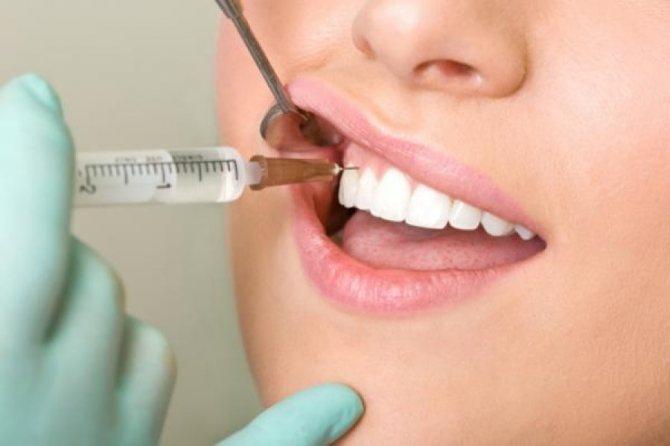 Внутрішньоротове введення анестезії