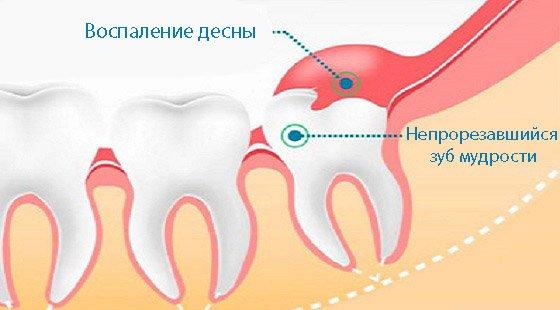 запалення ясен при непрорезавшійся зубі