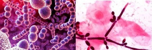 Збудники ангуліта під мікроскопом -стрептококкі і кандиди