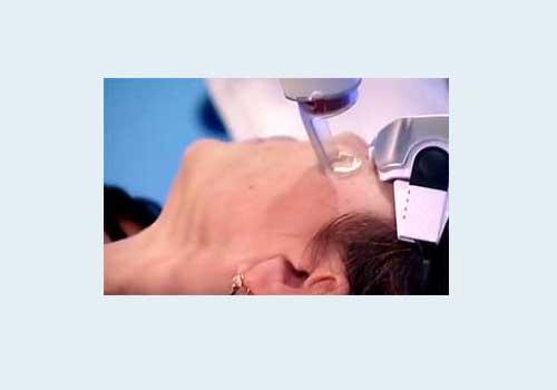 Вплив імпульсного лазера на шкіру