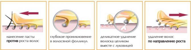 Врослі волосся на ногах, в зоні бікіні, лобку після шугаринга, епіляції. Засоби лікування: мазі, лосьйони, креми, скраби, бодяга, Бепантен, Левомеколь