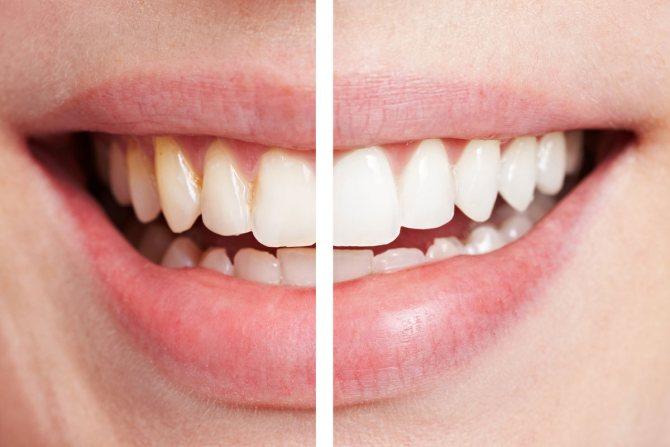 Вибираємо кращий відбілюючий гель для зубів. Висока ефективність не завжди безпечна