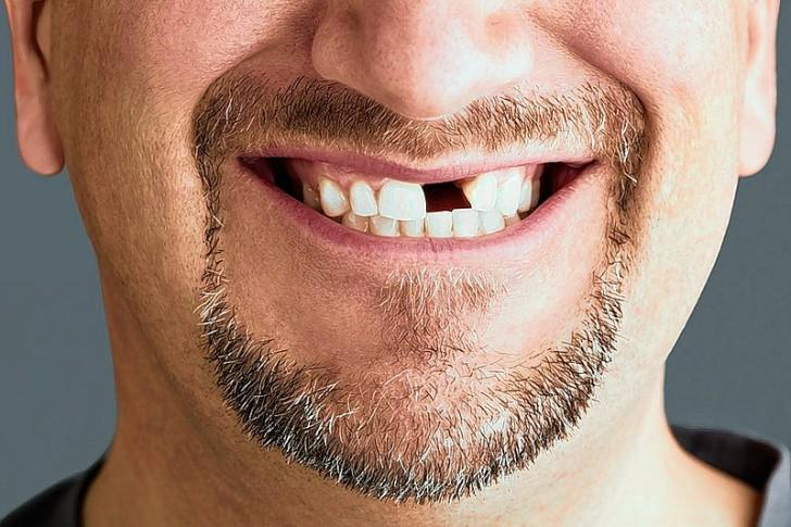 Випав передній зуб що можна зробити