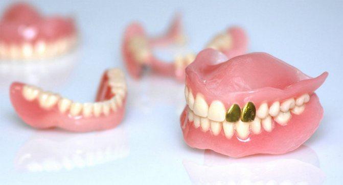 Випали вставні зуби