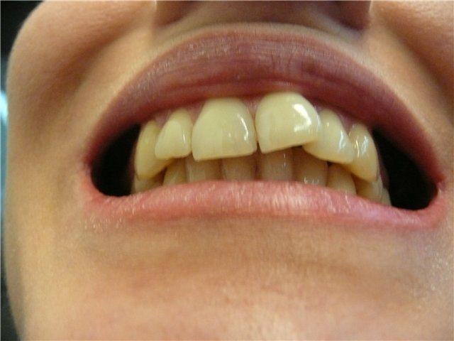 Випрямлення зубів без брекетів