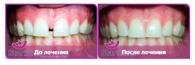 Вирівнювання зубів елайнери на прикладі діастеми