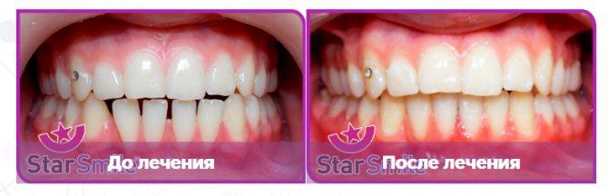 Вирівнювання зубів елайнери на прикладі проміжків на нижній щелепі