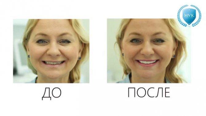 вирівнювання зубів Люмініри