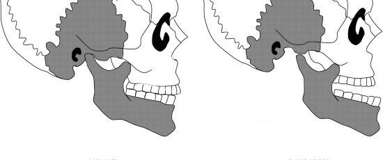 Вивих скронево-нижньощелепного суглоба