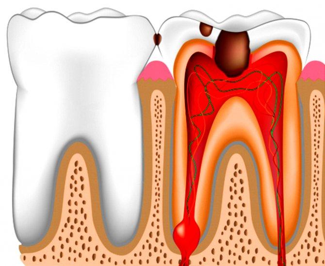 захворювання тканин зуба