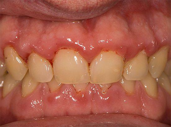 Найчастіше людині лише здається, що у нього болять зуби, а насправді болять ясна ...