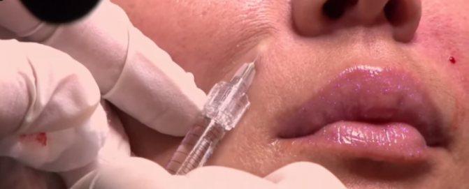 Заповнення філлерамі носогубних складок