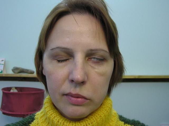 Застуджений лицевий нерв симптоми і лікування якщо продуло і болить
