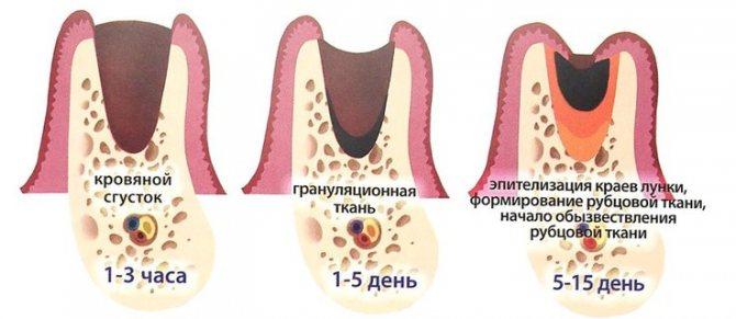 загоєння ясен після видалення зуба