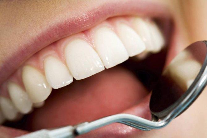 зуб мудрості наполовину закритий яснами