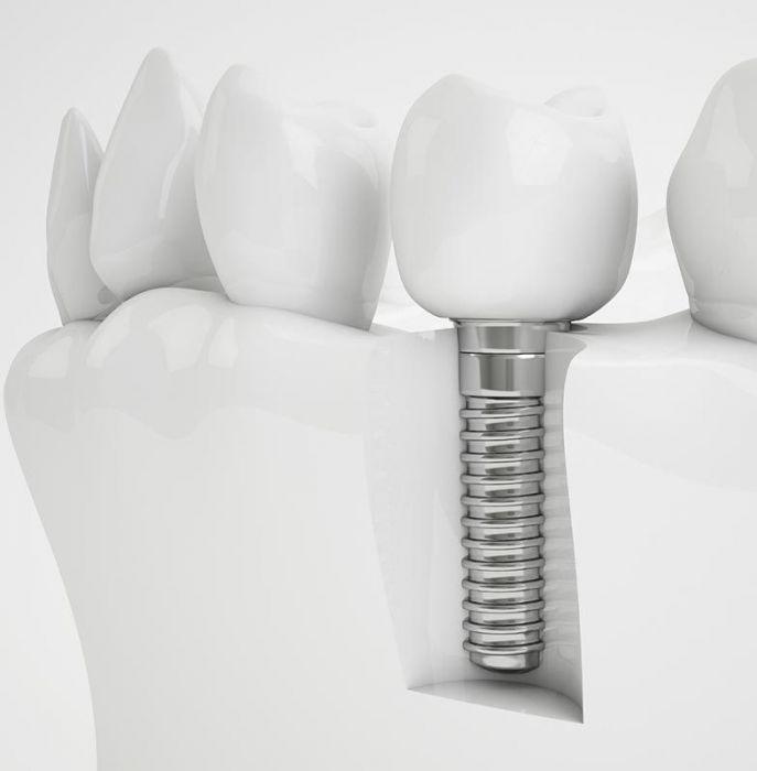 зубний імплант