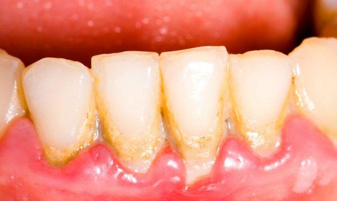 Зубний камінь і наліт