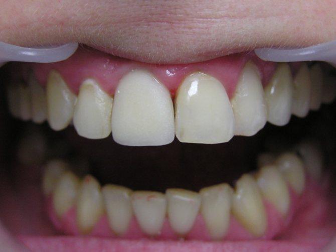 зубний протез