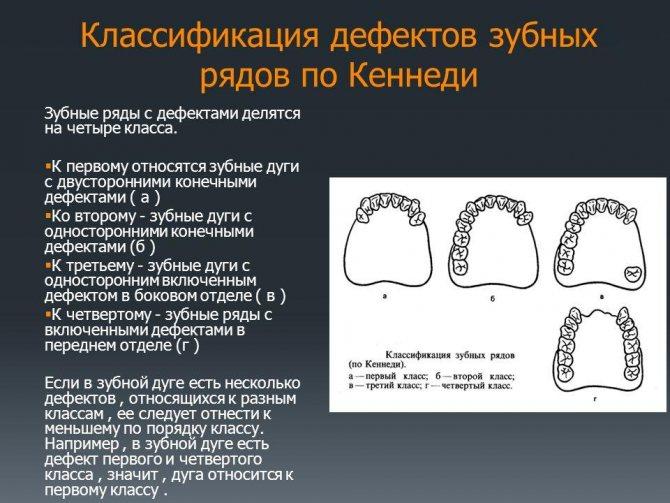 зубний ряд