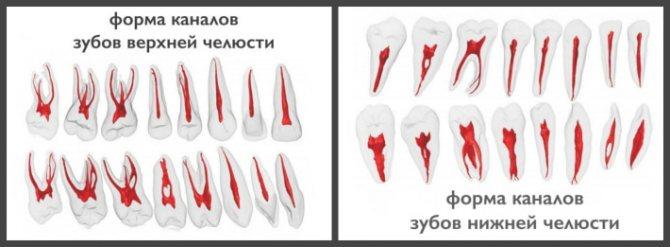 зубні канали