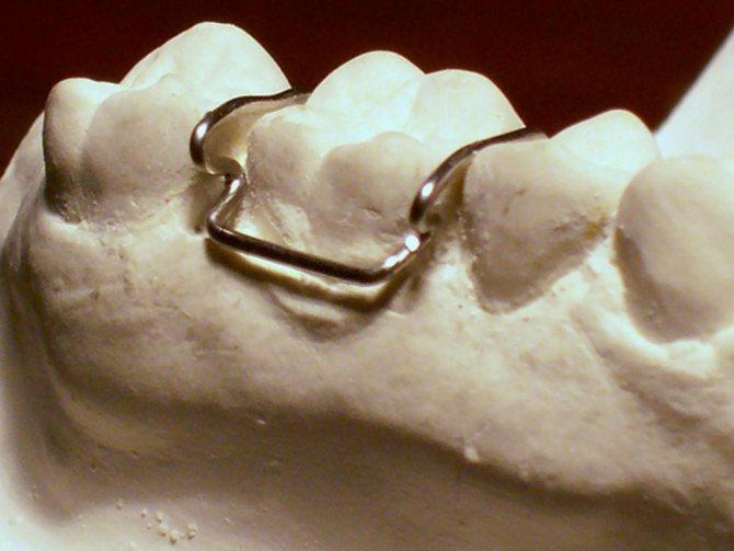 зубні кламерами