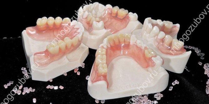 Зубні протези з нейлону