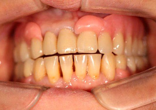 зубні протези натирають ясна