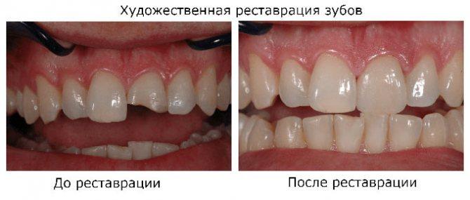 зуби після реставрації