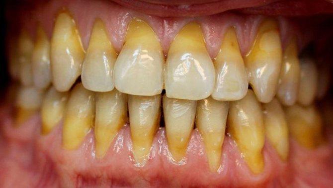 Зуби біля коренів стають темнішими